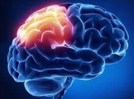 Vital Questions Answered About Brain Injuries and Legal Claims - From Mild to Traumatic